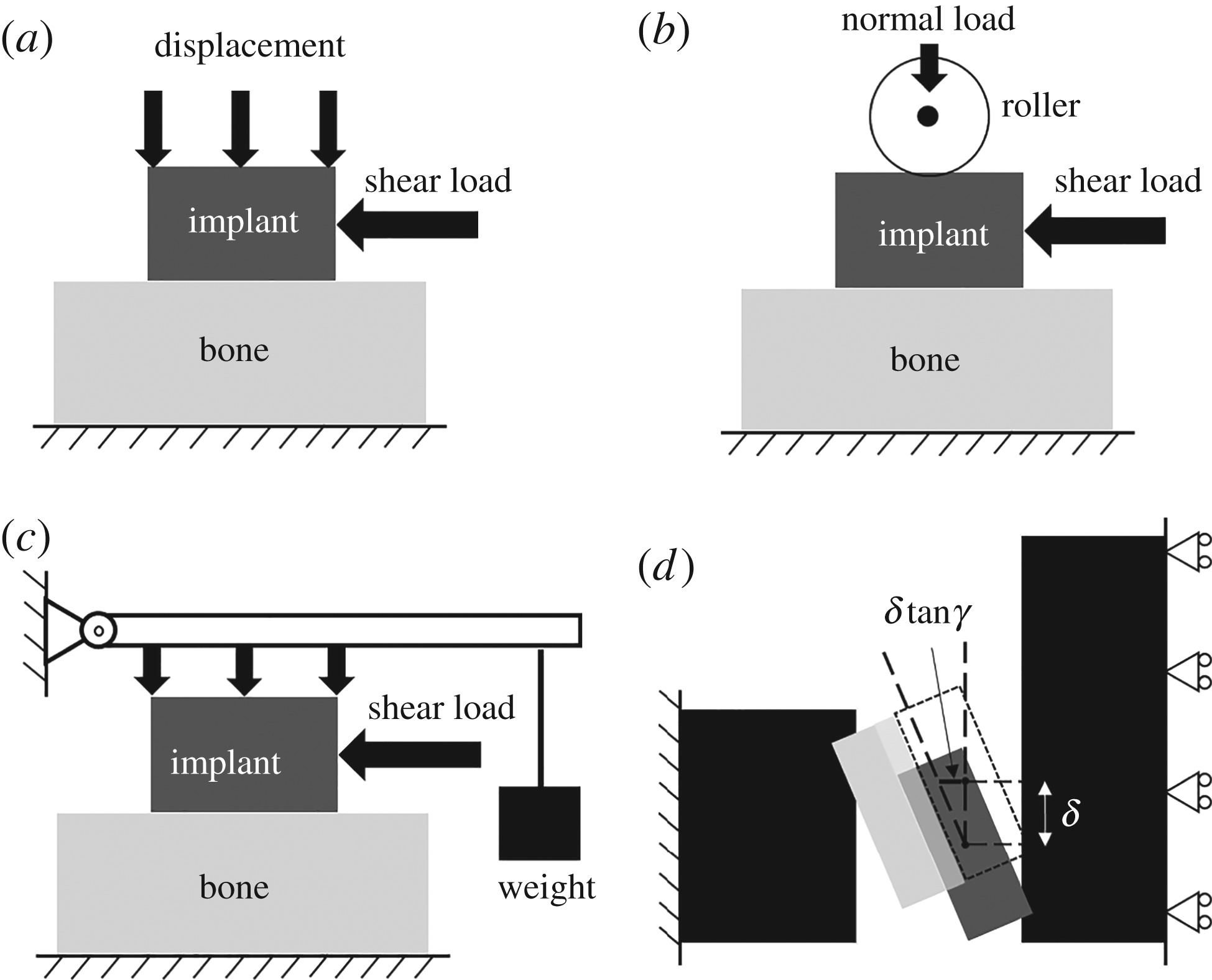 Biomechanical Behaviours Of The Bone Implant Interface A Review