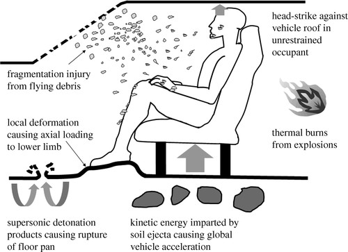 In-vehicle extremity injuries from improvised explosive