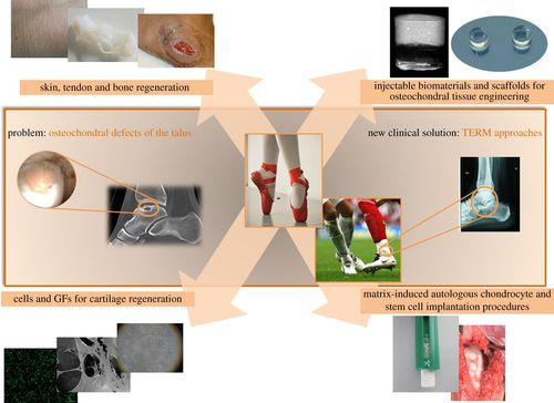 Current concepts: tissue engineering and regenerative