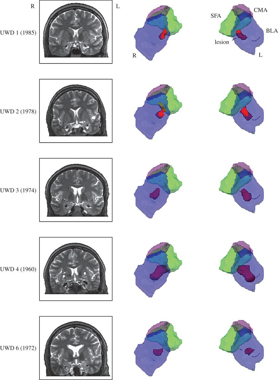 4e3bb314929 The role of the basolateral amygdala in the perception of faces in ...