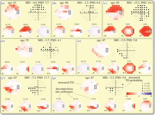 Patterns of functional vision loss in glaucoma determined