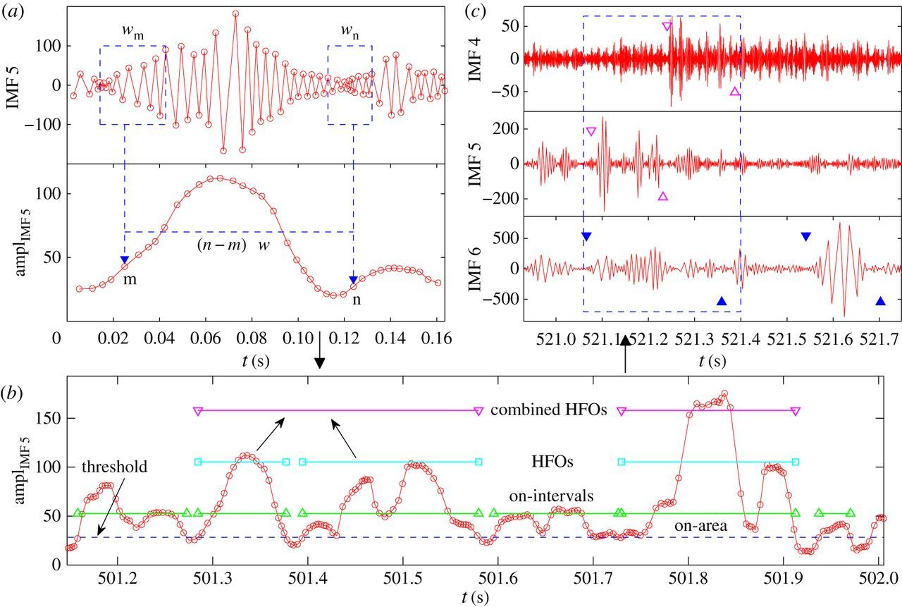 Detecting and characterizing high-frequency oscillations in
