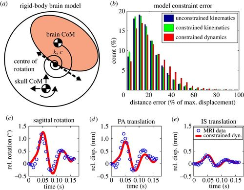 Resonance of human brain under head acceleration | Journal