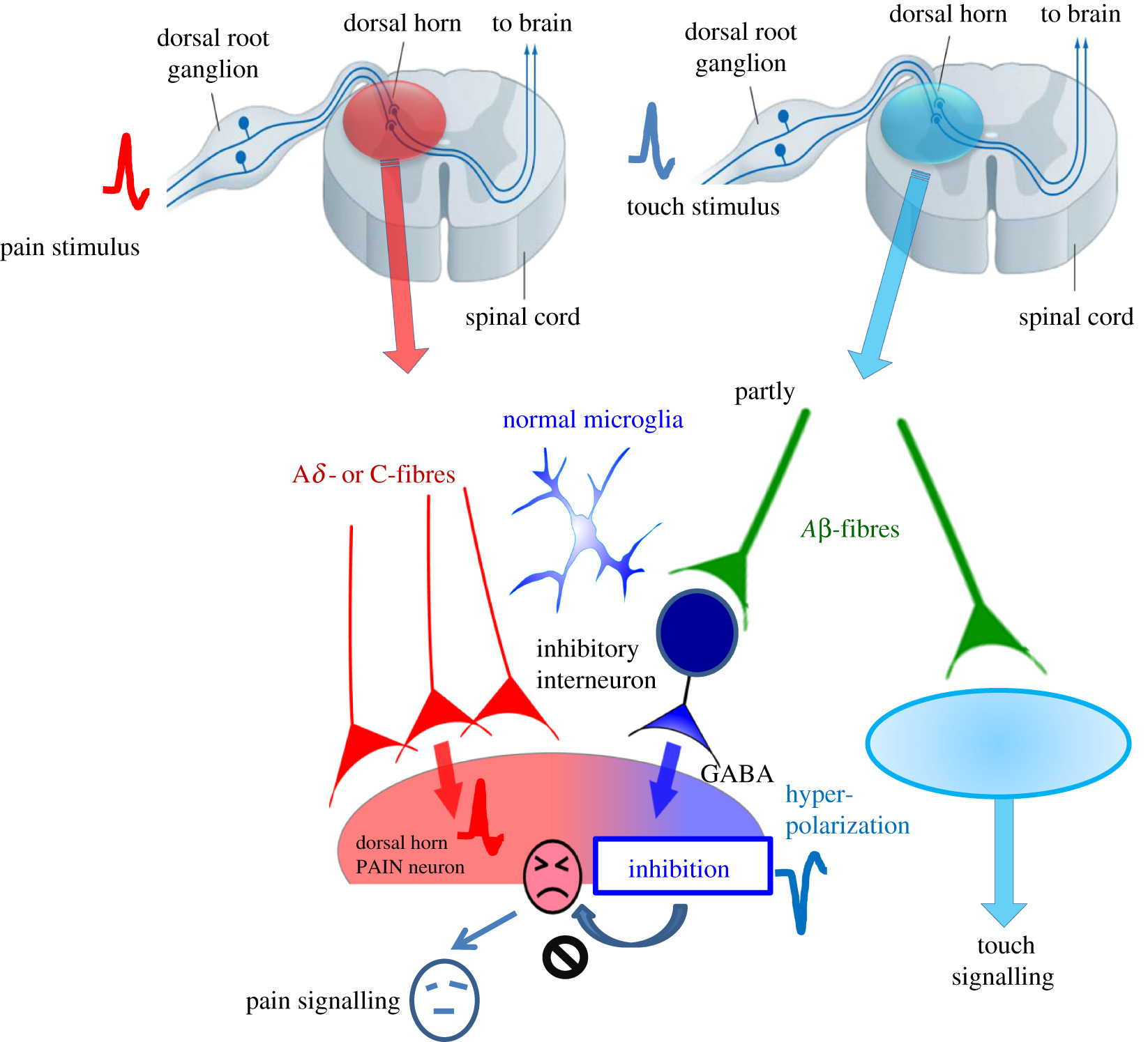 A state-of-the-art perspective on microgliopathic pain | Open Biology