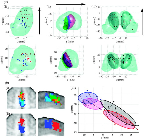 Relating connectional architecture to grey matter function